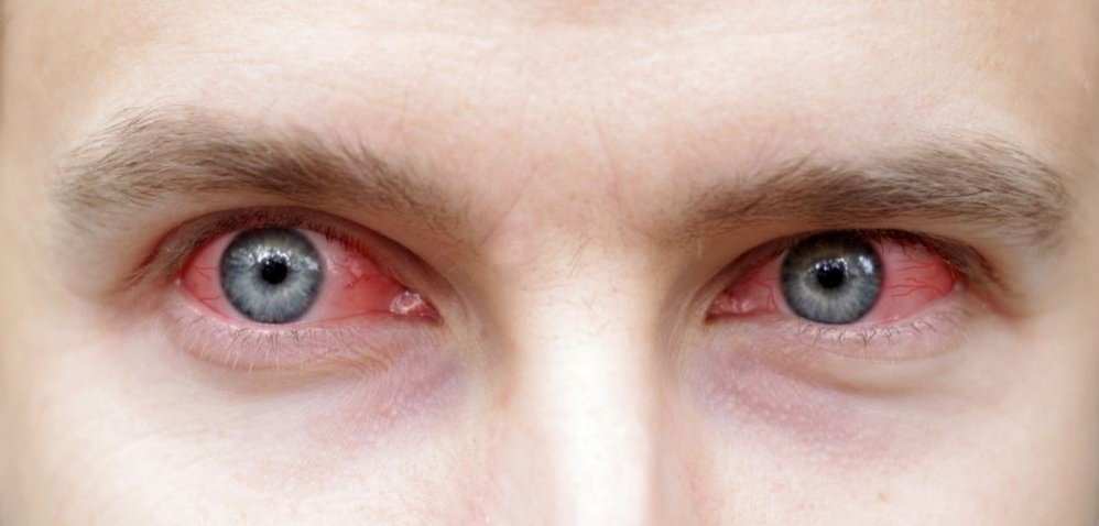 Red Eyes While Smoking Cannabis