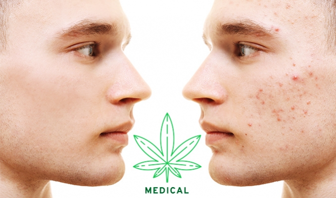 Is Cannabis An Effective Treatment For Acne?